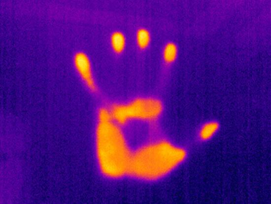 HandThermal Imaging