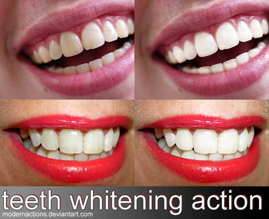 Teeth Whitening Action